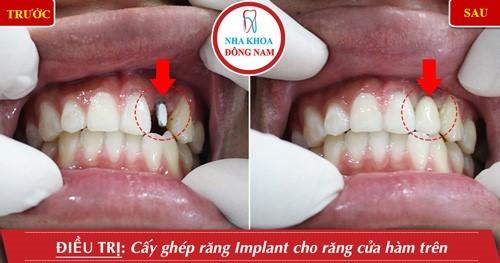 cấy 1 trụ implant răng cửa