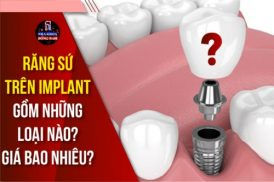 Răng sứ Implant gồm những loại nào? Giá bao nhiêu?