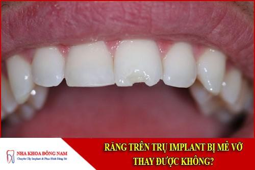 Răng trên trụ Implant bị mẻ vỡ thay được không?