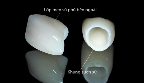 cấu tạo của răng sứ toàn sứ