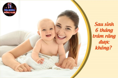 Sinh em bé hơn 6 tháng trám răng được chưa bác sĩ?