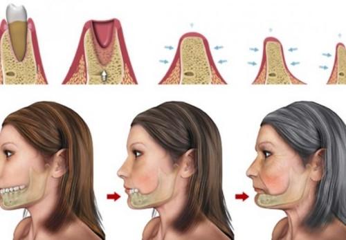 Tác hại của việc mất răng