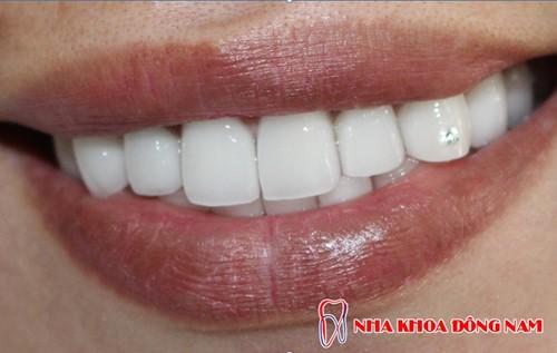 Tạo 2 răng thỏ bằng phương pháp bọc sứ