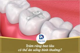Trám răng bao lâu có thể ăn uống bình thường?