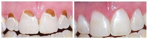 trám răng bị mòn cổ