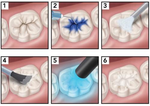 mô phỏng quy trình trám răng