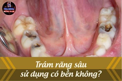 Trám răng sâu sử dụng có bền không?
