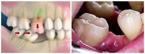 xô lệch răng