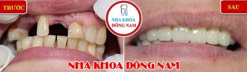 trồng cầu sứ phục hình răng cửa
