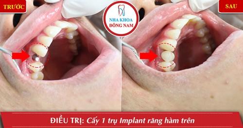 trồng 1 cái răng bằng implant