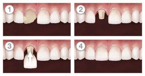 mô phỏng làm răng nanh sứ