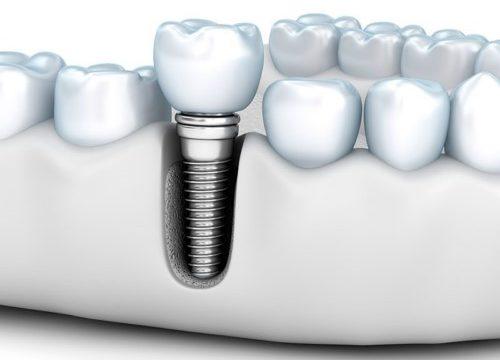 Trồng răng theo phương pháp mới: Làm 1 lần sử dụng vĩnh viễn