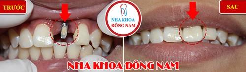 cấu 1 trụ implant răng cửa