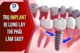 Trụ Implant bị lung lay thì phải làm sao?