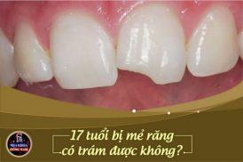 17 tuổi răng bị mẻ có trám được không?