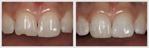 trám răng bị mẻ