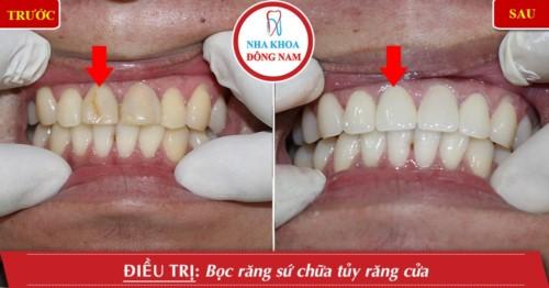 bọc sứ cho răng hư tổn
