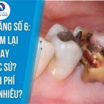 Bị bể răng số 6: Trám lại hay Bọc sứ? Chi phí bao nhiêu?