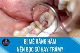 Bị mẻ răng hàm nên bọc sứ hay trám?