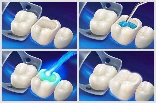 mô phỏng kỹ thuật trám răng hàm