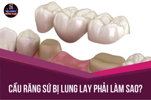 Cầu răng sứ bị lung lay phải làm sao?
