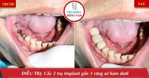 trồng implant cho răng hàm