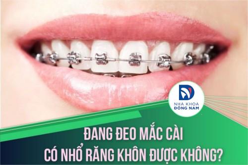 Đang đeo mắc cài có nhổ răng khôn được không?