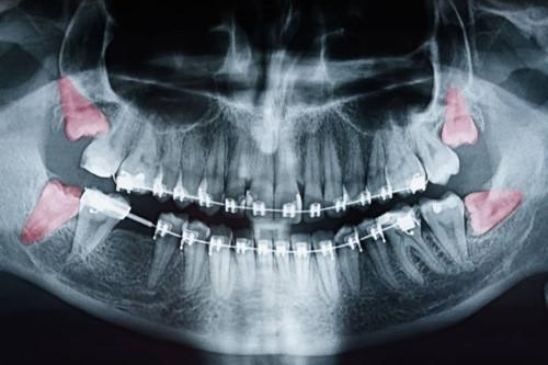 phim x-quang răng khôn