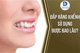 Đắp răng khểnh sử dụng được bao lâu?