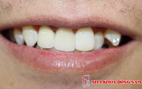đắp răng khểnh composite