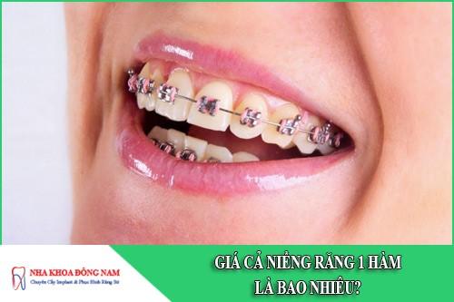 Giá cả niềng răng 1 hàm là bao nhiêu?