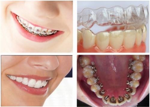 các phương pháp niềng răng