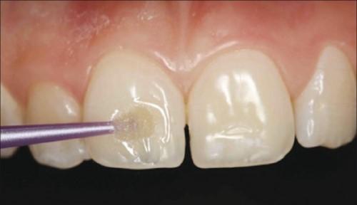 răng bị mòn