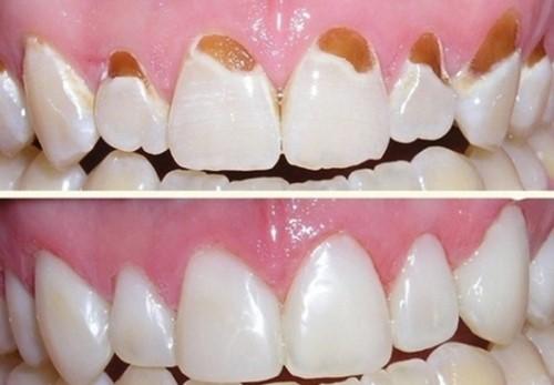 khắc phục tình trạng hỏng men răng
