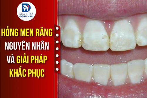 hỏng men răng nguyên nhân và giải pháp khắc phục