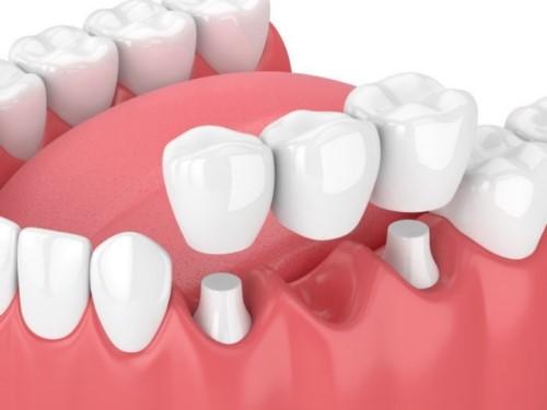 mô phỏng trồng răng bằng cầu sứ