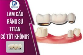 Làm cầu răng sứ Titan có tốt không?