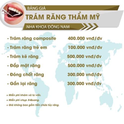 bảng giá trám răng