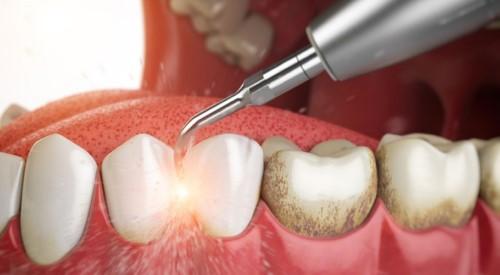 mô phỏng cạo vôi răng