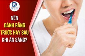 nên đánh răng trước hay sau khi ăn sáng