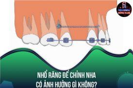 Nhổ răng để chỉnh nha có ảnh hưởng gì không?