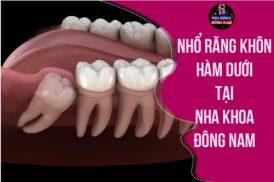 Review nhổ răng khôn hàm dưới của bệnh nhân tại Nha khoa Đông Nam