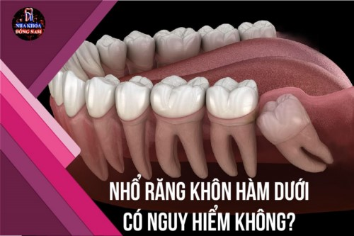 Nhổ răng khôn hàm dưới có nguy hiểm không?