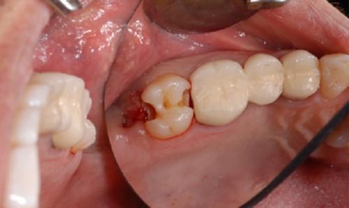 răng số bị sâu
