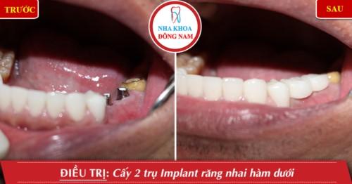 trồng răng nhai hàm dưới