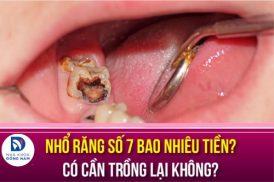 Nhổ răng số 7 bao nhiêu tiền? Có cần trồng lại không?