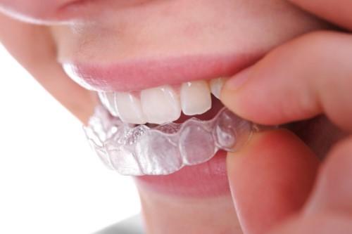 máng duy trì niềng răng