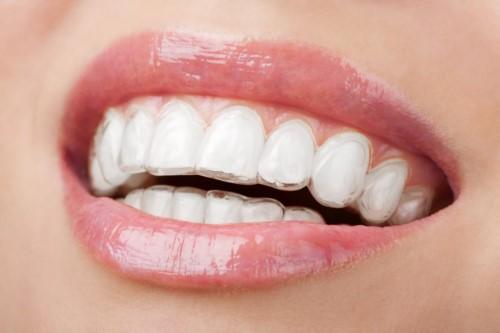 đeo máng duy trì sau khi niềng răng