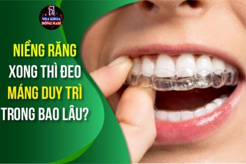 Niềng răng xong thì đeo máng duy trì trong bao lâu?