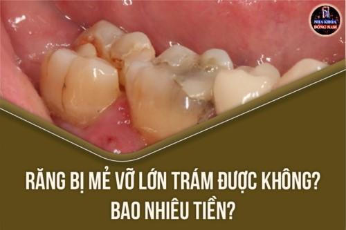 Răng bị mẻ vỡ lớn trám được không? Bao nhiêu tiền?